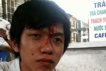 Anh Nguyễn Hoàng Hưng – sinh viên Đại học Thủy lợi - bị nhân viên chi nhánh Định Công, Cty TNMU đánh chảy máu đầu.
