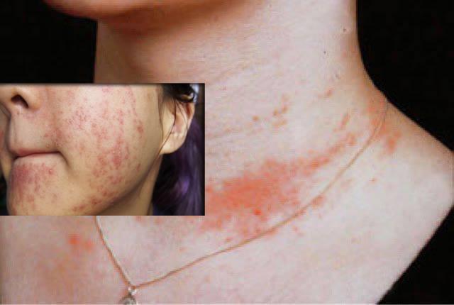 Viêm da dị ứng nhất là ở mặt, cổ, nách và đùi non (bẹn)