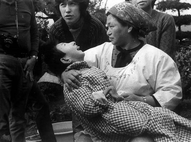 Một nạn nhân của bệnh Minamata - bệnh nhiễm độc thủy ngân.