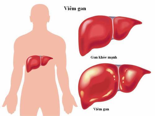 Viêm gan do virus cướp đi sinh mạng của nhiều người.